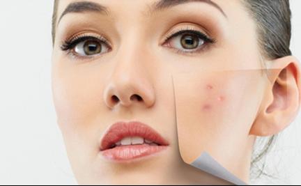 smartskin-tratament-juliette-armand-acnee